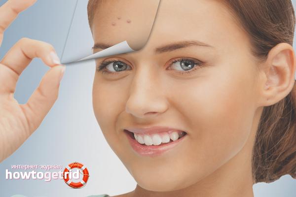 Com desfer-se de l'acne