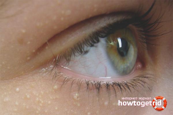Com desfer-se de wen sota els ulls