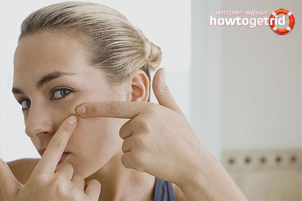 Com desfer-se de l'acne purulent a la cara