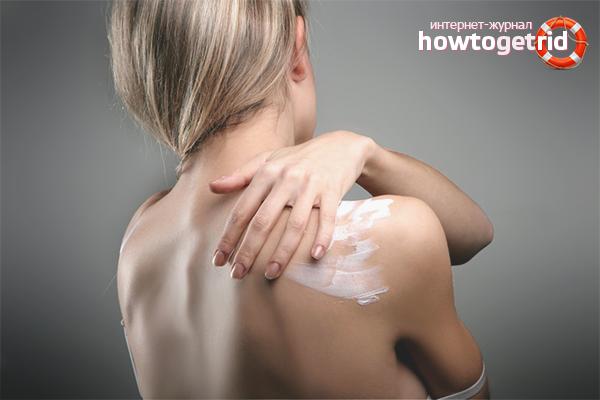Com desfer-se de l'acne a l'esquena i les espatlles ràpidament