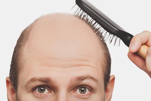 Baldness ārstēšana