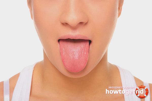 Định nghĩa bệnh bằng mảng bám ở lưỡi
