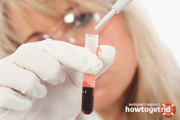 Causes de coagulació de la sang