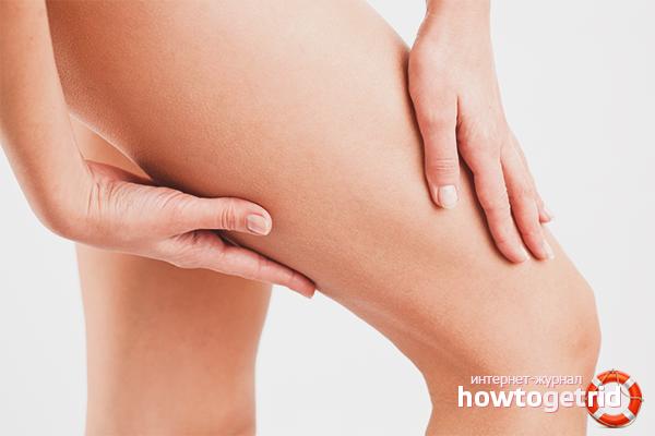 Cara menghilangkan kulit kendur di kaki