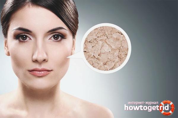 Hvordan man plejer tør hud