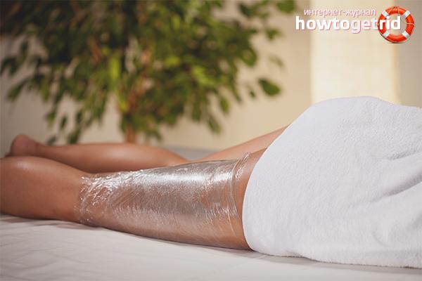 Prosedur kosmetik untuk kaki kendur