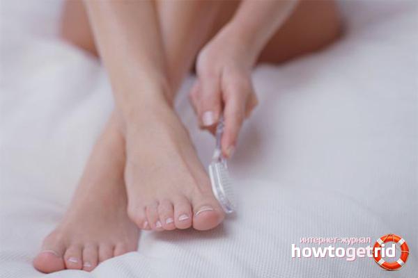 Com desfer-se dels corns als dits dels peus