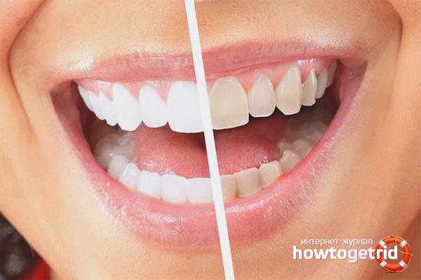 Com desfer-se de la placa a les dents