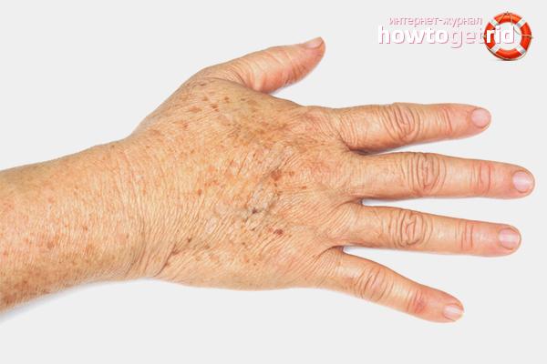 Wie man Altersflecken an den Händen loswird
