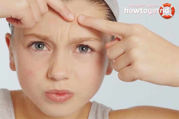 Com desfer-se de l'acne subcutani a la cara