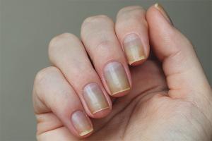 Com restaurar les ungles després del gel