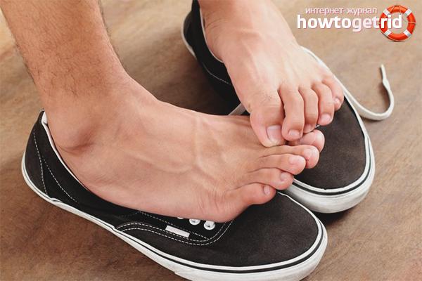Cara mengelakkan jangkitan dengan kulat pada kaki