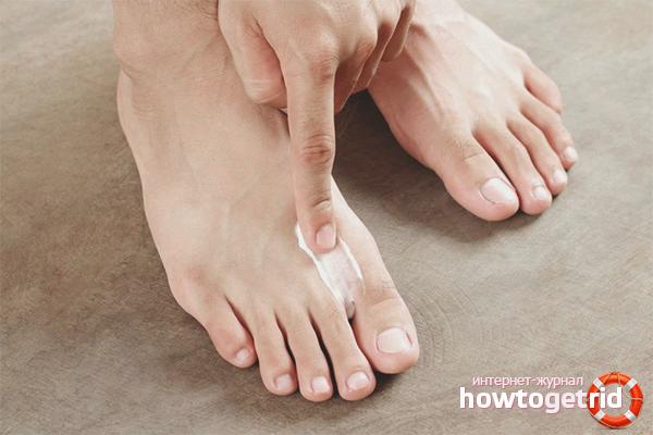 Cara merawat kulat kuku kaki