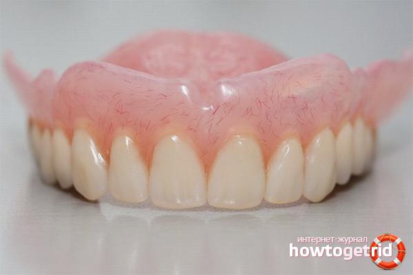 Wie man Zahnersatz aufhellt