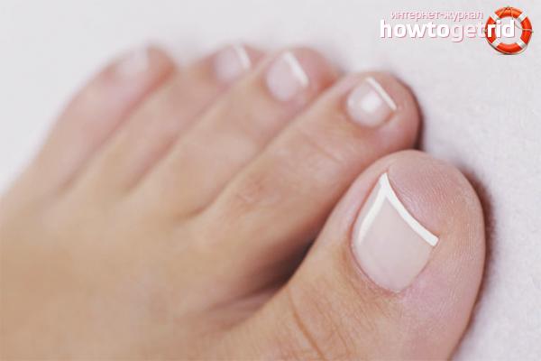 Cara mengenali kulat kuku jari kaki