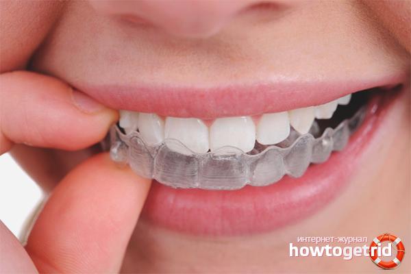 Zobu izlīdzināšanas paraugi