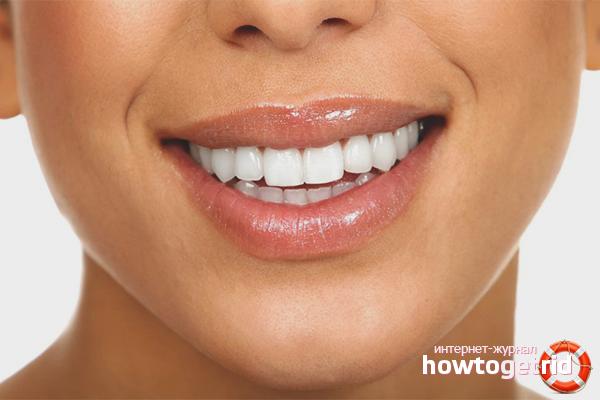 Kā salabot greizus zobus