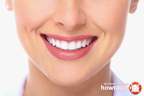 Como curar a cárie dentária