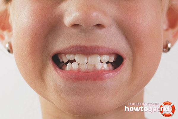 Kā stiprināt bērnu zobus