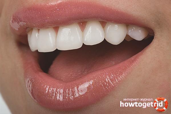 Kā stiprināt zobus, ja tie sabojājas?