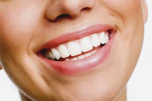 Cum se albesc dintii