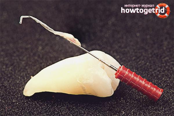 Kā nogalināt nervu zobā