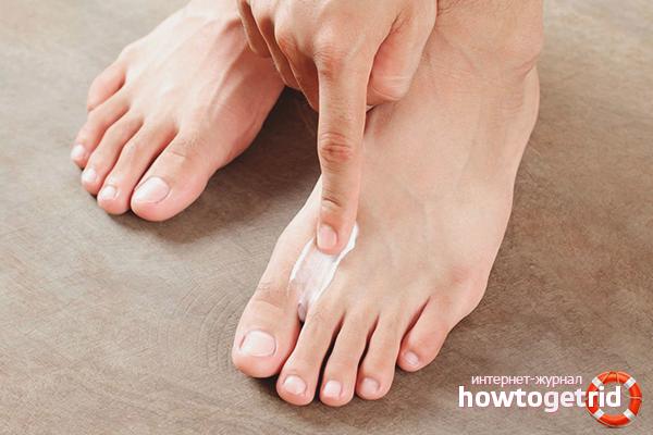 Cara merawat kulat di antara jari kaki