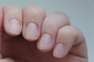 Per què les ungles es pelen i es trenquen