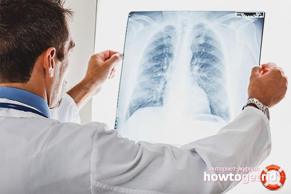Forma i diagnoza gruźlicy