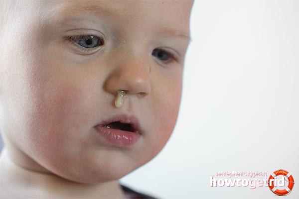 Kā ārstēt zaļo puņķi bērnā