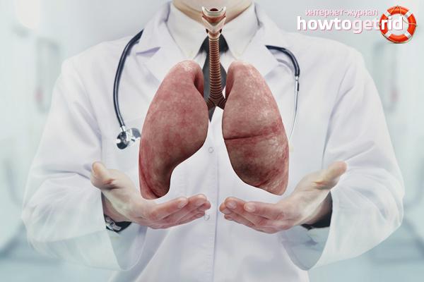 Zapobieganie gruźlicy
