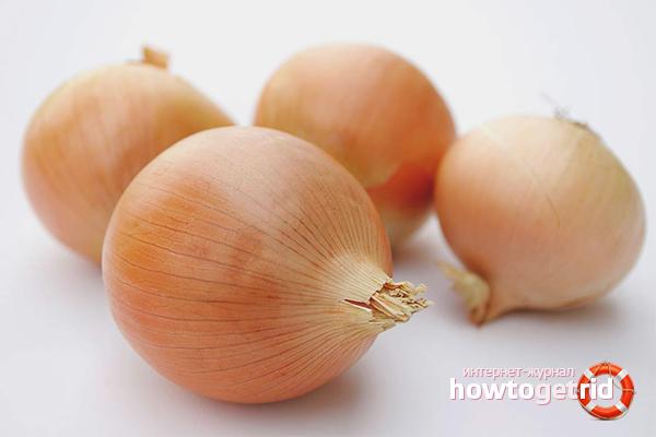 Die Verwendung von Zwiebeln für schwangere Frauen