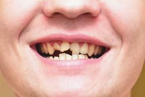 Ce trebuie să faceți dacă dinții se sfărâmă