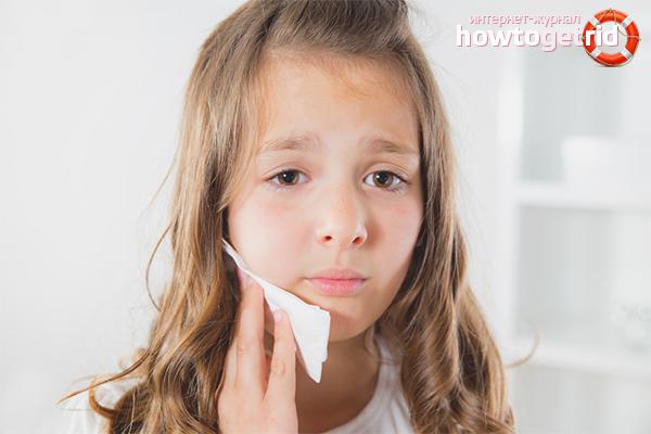 O que fazer se uma criança tiver dor de dente