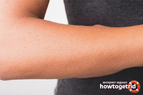 Bagaimana untuk menghilangkan lebam di tangan anda