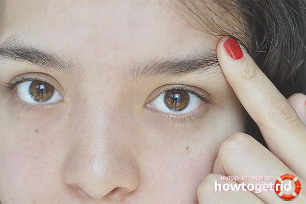 Augenbrauen fallen heraus