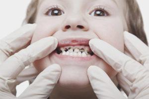 Placă neagră pe dinții unui copil