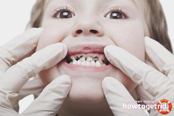 Melna plāksne uz bērna zobiem