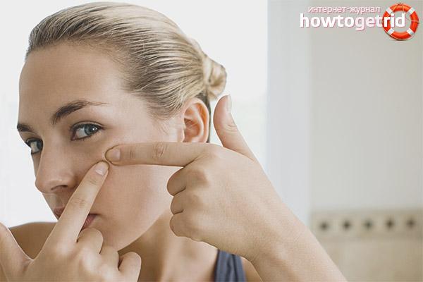 Czy można wycisnąć trądzik na twarz?
