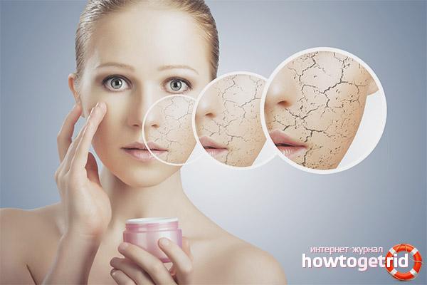 Codzienna pielęgnacja suchej skóry