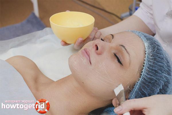 Specjalna pielęgnacja skóry po obieraniu
