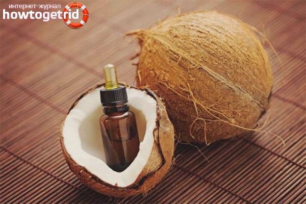 Minyak kelapa untuk kesan regangan semasa kehamilan
