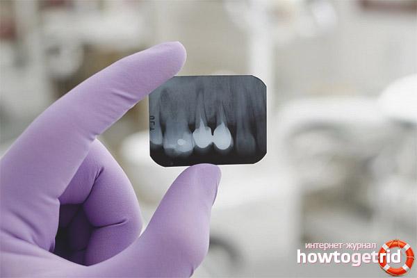 És possible fer una radiografia de dents durant l'embaràs?