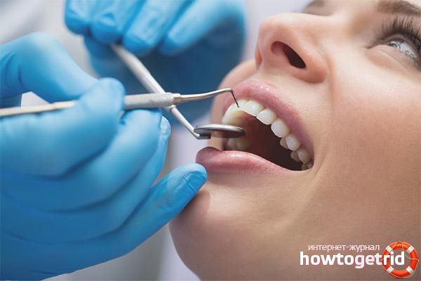 Ist es möglich, Zähne mit Stillen zu behandeln
