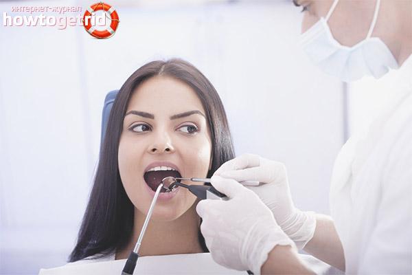 Eliminació de dents durant l'embaràs