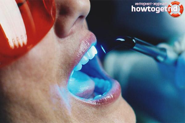 Laser Zahnaufhellung