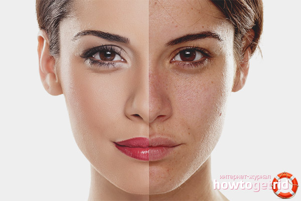 Jak wyrównać skórę po trądziku