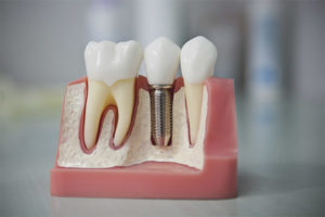 Implantació dental